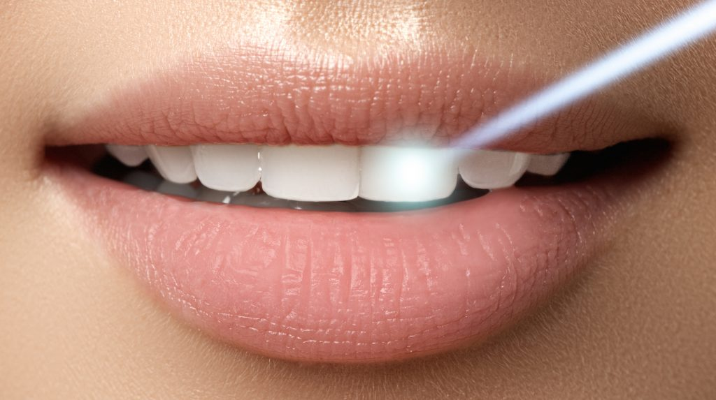 What is Laser Dentistry?